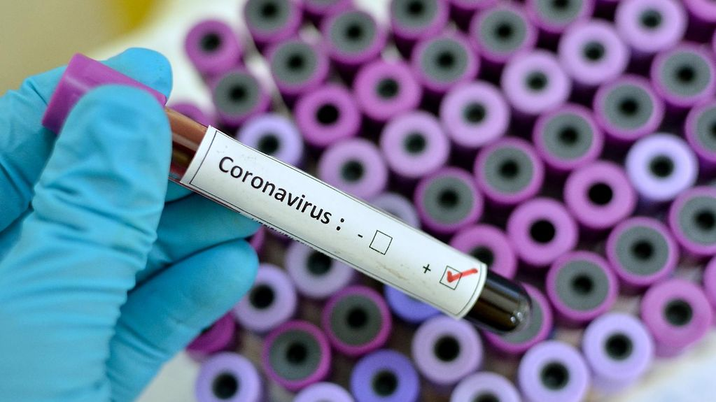 "A hand in a latex glove holds a brown tube labelled ""Coronavirus""."